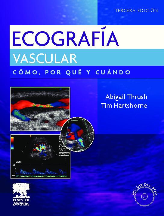 Ecografia Vascular epub