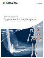 periprosthetic fracture management-michael schutz-carsten perka-9783131715111