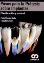 pasos para la protesis sobre implantes: planificacion y control 9789588950921