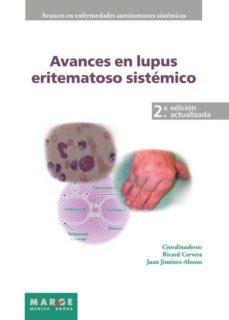 Descargar libros en español online. AVANCE EN EL LUPUS ERITEMATOSO SISTEMATICO FB2 iBook MOBI de RICARD CERVERA 9788415340201 (Literatura española)
