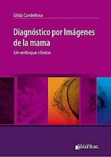 Descarga gratuita de libros nuevos. DIAGNOSTICO POR IMAGENES DE LA MAMA: UN ENFOQUE CLINICO 9789871259441 DJVU PDF en español