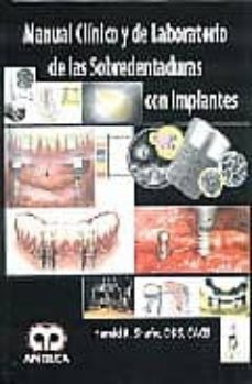 Libro de descargas de libros electrónicos gratis MANUAL CLINICO Y DE LABORATORIO DE LAS SOBREDENTADURAS CON IMPLAN TES en español de HAMID R. SHAFIE 9789588473161